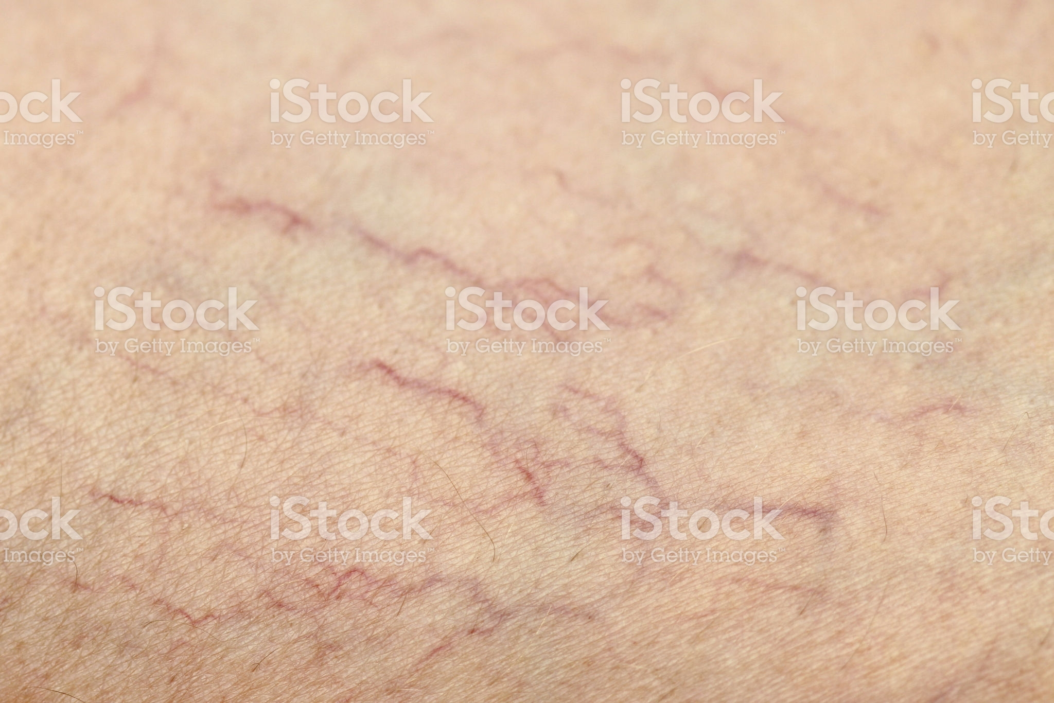 Human Spider Veins on Leg Closeup